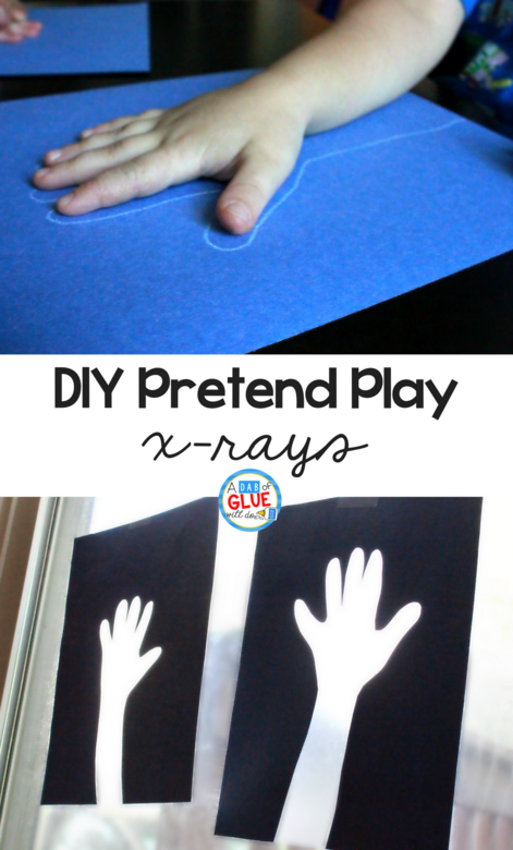 While having real x-rays would provide the best experience, that isn't always possible.  These DIY pretend play x-rays make a great alternative and provide hours of fun for preschoolers and kindergartners.